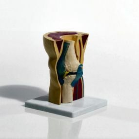 Demonstration Model Knee