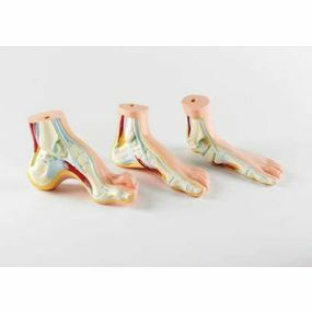 Model - Normal Flat Arched Foot Set